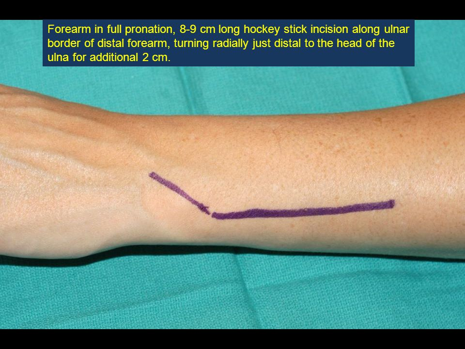 Forearm in full pronation, 8-9 cm long hockey stick incision along ulnar border of distal forearm, turning radially just distal to the head of the ulna for additional 2 cm.