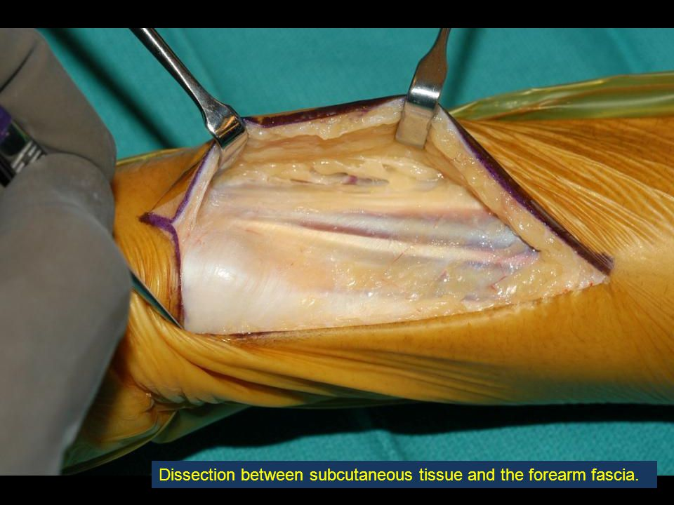 Dissection between subcutaneous tissue and the forearm fascia.