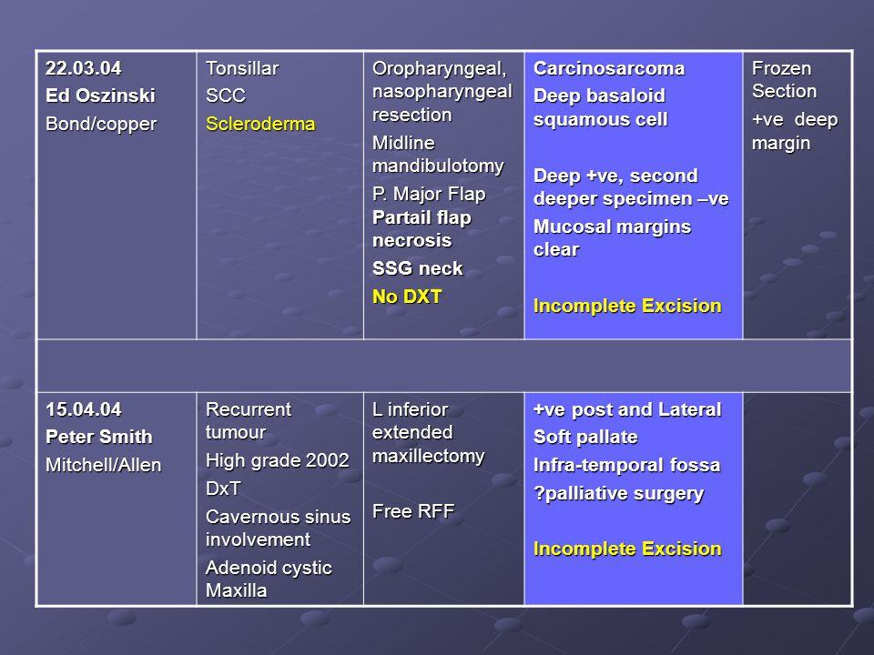 22.03.04 Ed Oszinski. Bond/copper. Tonsillar. SCC. Scleroderma. Oropharyngeal, nasopharyngeal resection.