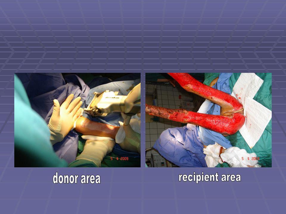 donor area recipient area