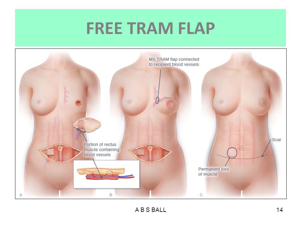 FREE TRAM FLAP A B S BALL