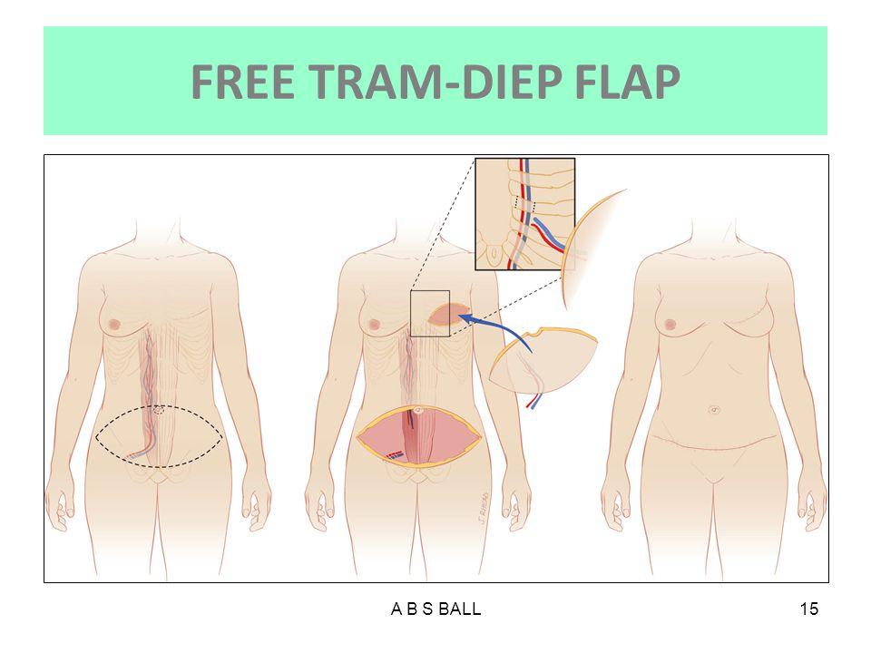 FREE TRAM-DIEP FLAP A B S BALL