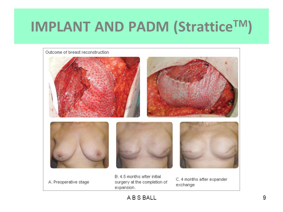 IMPLANT AND PADM (StratticeTM)