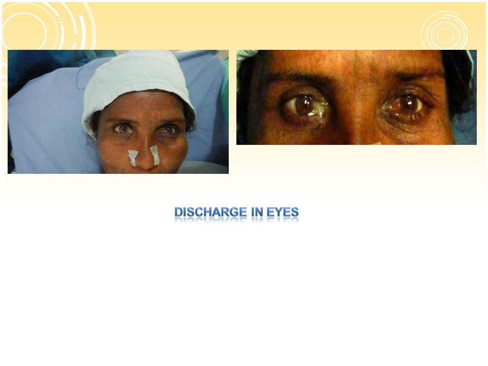 Discharge in eyes