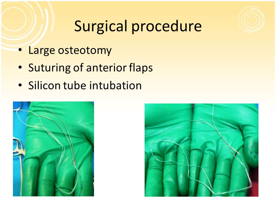 Surgical procedure Large osteotomy Suturing of anterior flaps