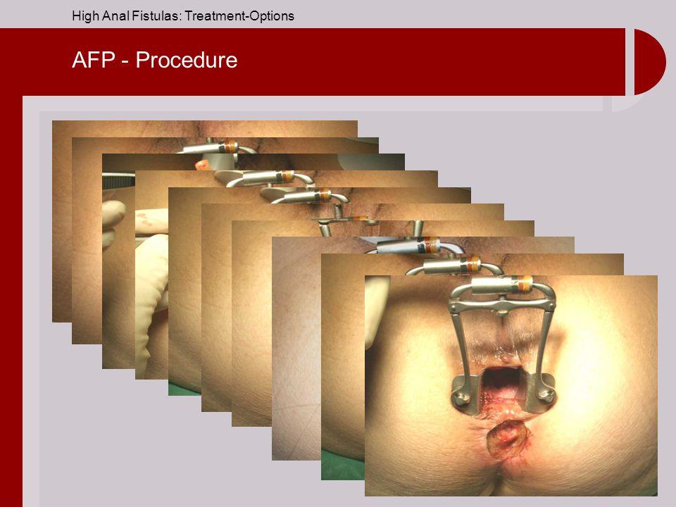 AFP - Procedure
