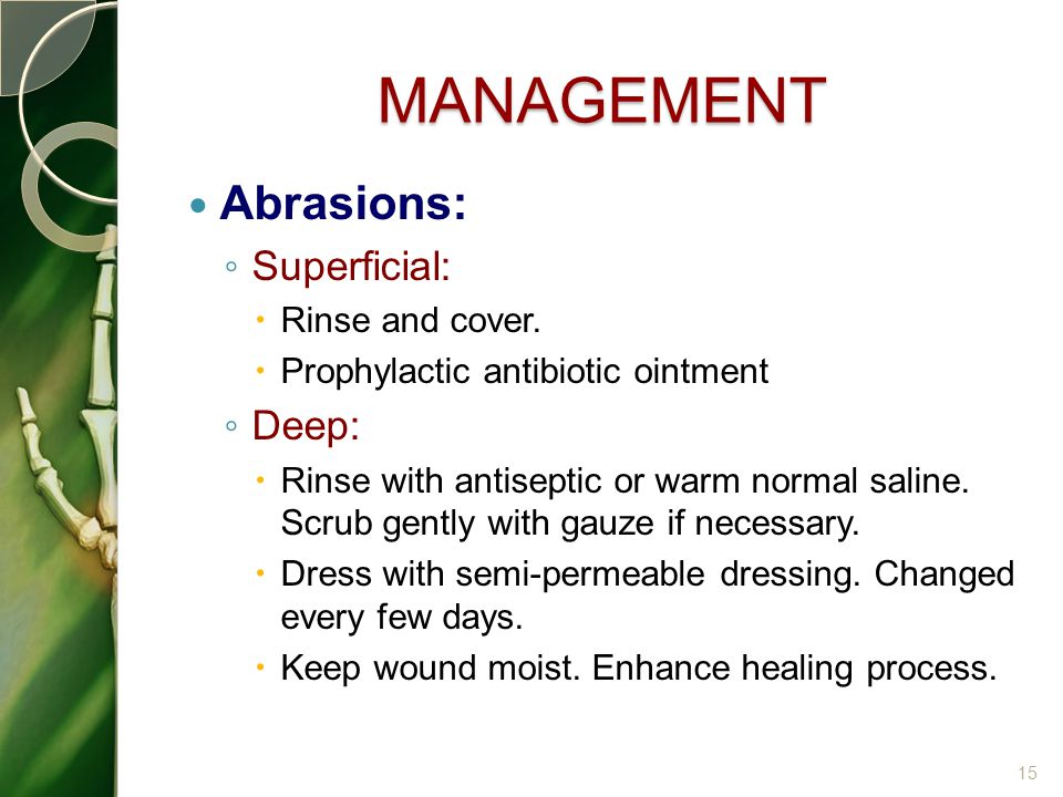 MANAGEMENT Abrasions: Superficial: Deep: Rinse and cover.
