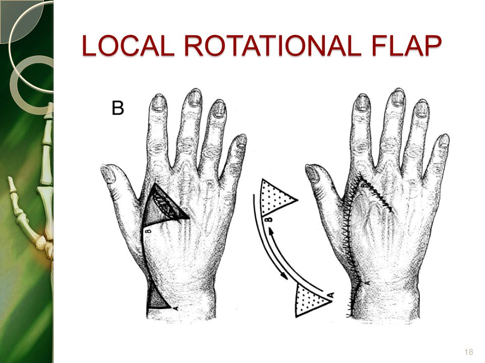 LOCAL ROTATIONAL FLAP
