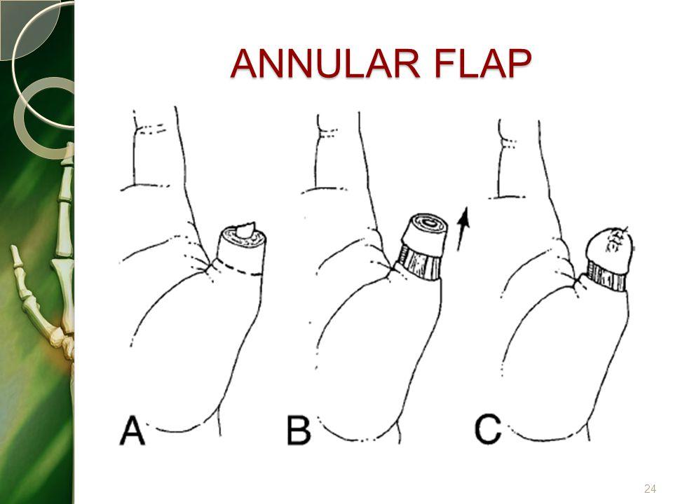 ANNULAR FLAP