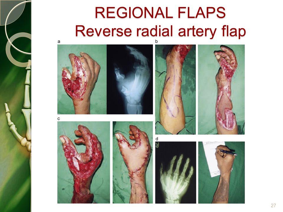 REGIONAL FLAPS Reverse radial artery flap