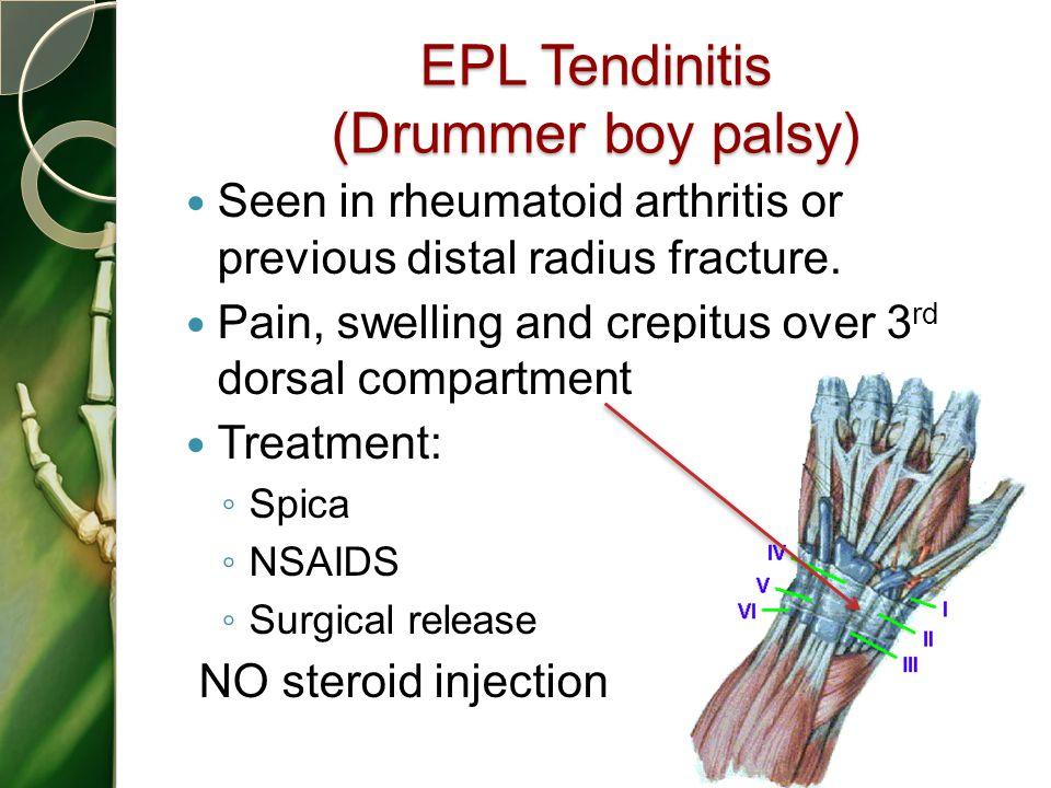EPL Tendinitis (Drummer boy palsy)