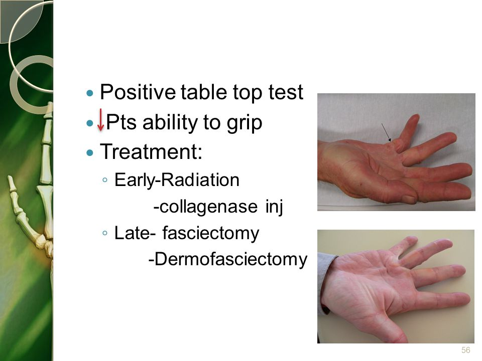 Positive table top test Pts ability to grip Treatment: