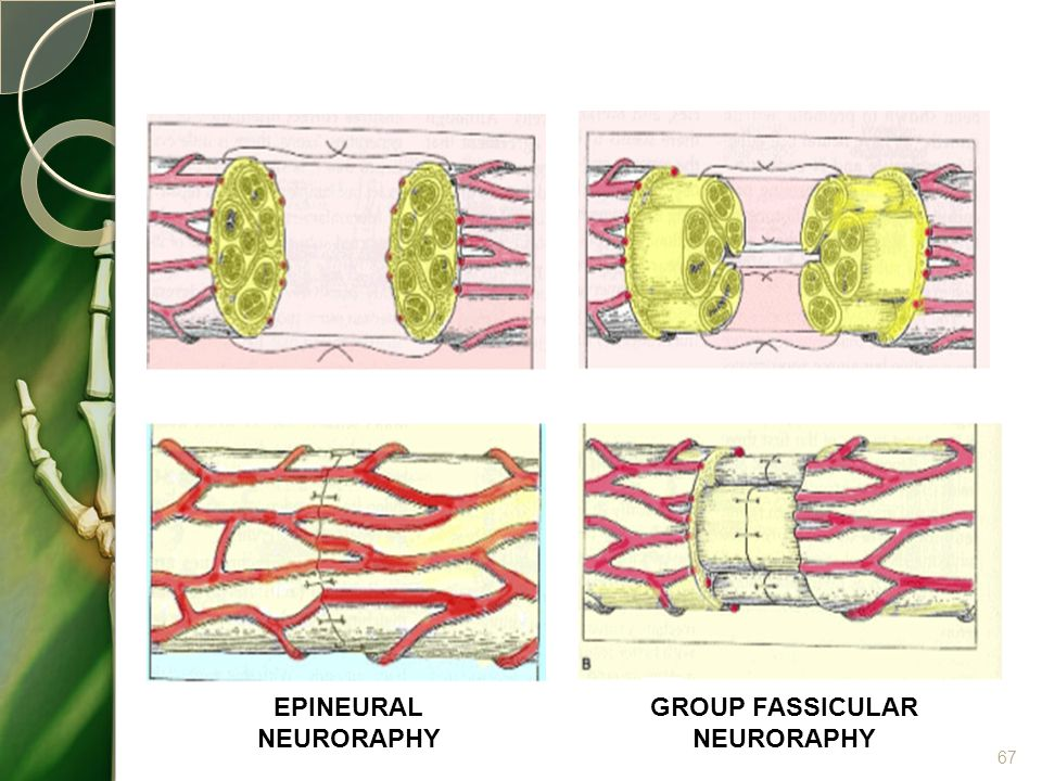 GROUP FASSICULAR NEURORAPHY