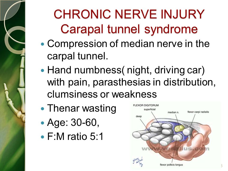 CHRONIC NERVE INJURY Carapal tunnel syndrome