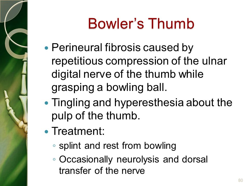 Bowler's Thumb Perineural fibrosis caused by repetitious compression of the ulnar digital nerve of the thumb while grasping a bowling ball.