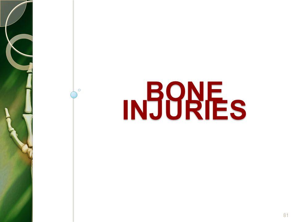 Bone injuries