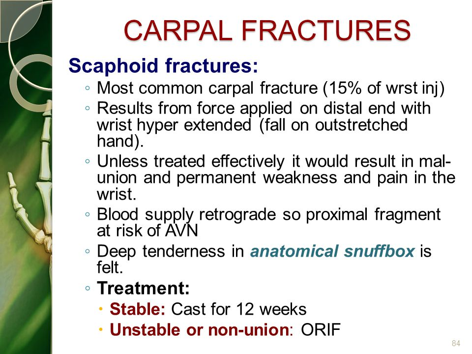 CARPAL FRACTURES Scaphoid fractures: Treatment: