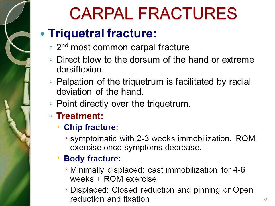 CARPAL FRACTURES Triquetral fracture: 2nd most common carpal fracture