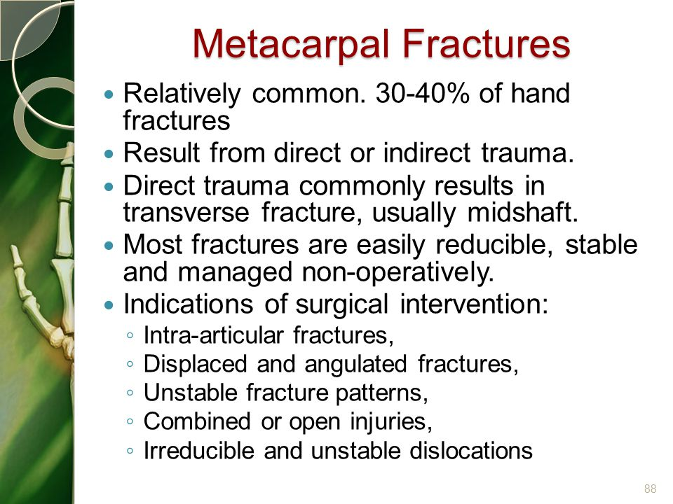Metacarpal Fractures Relatively common. 30-40% of hand fractures