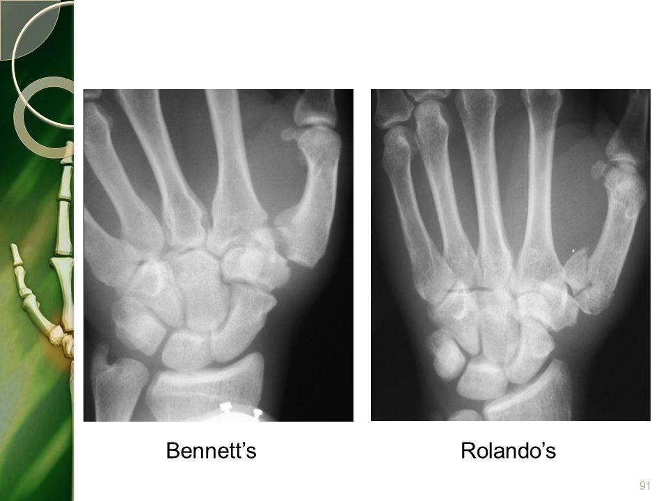 Bennett's Rolando's