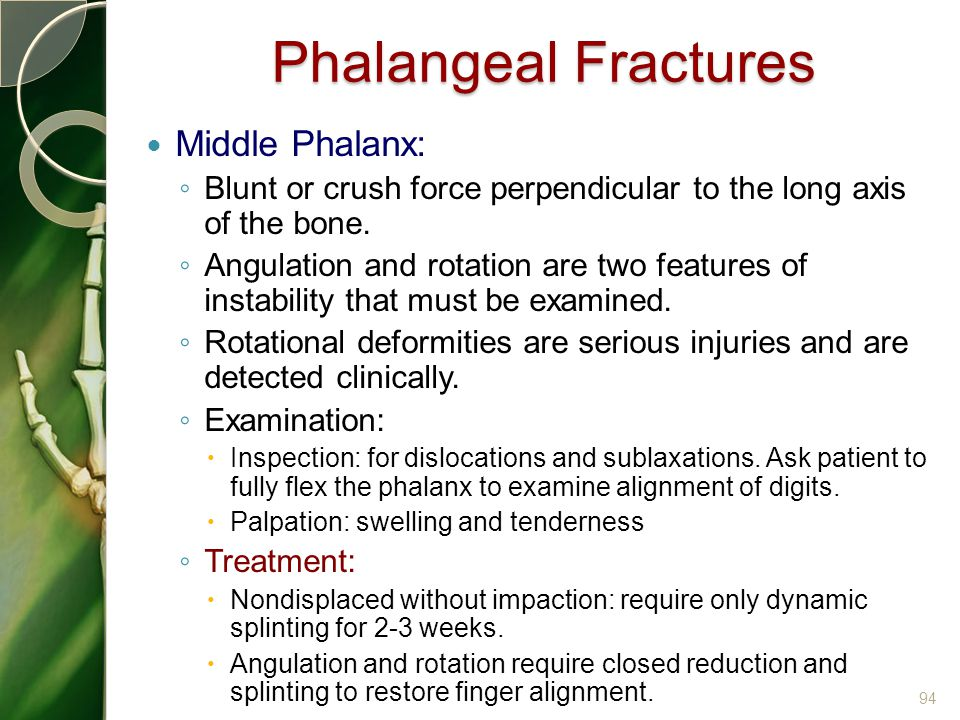 Phalangeal Fractures Middle Phalanx: