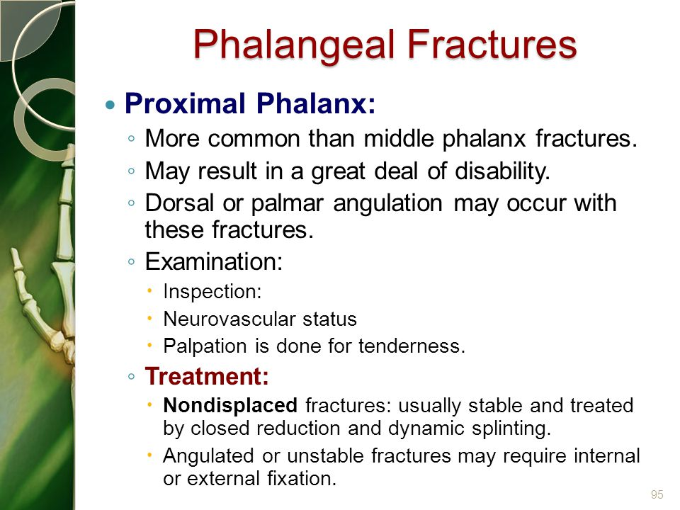 Phalangeal Fractures Proximal Phalanx: