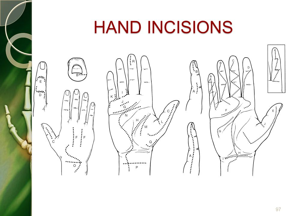 HAND INCISIONS