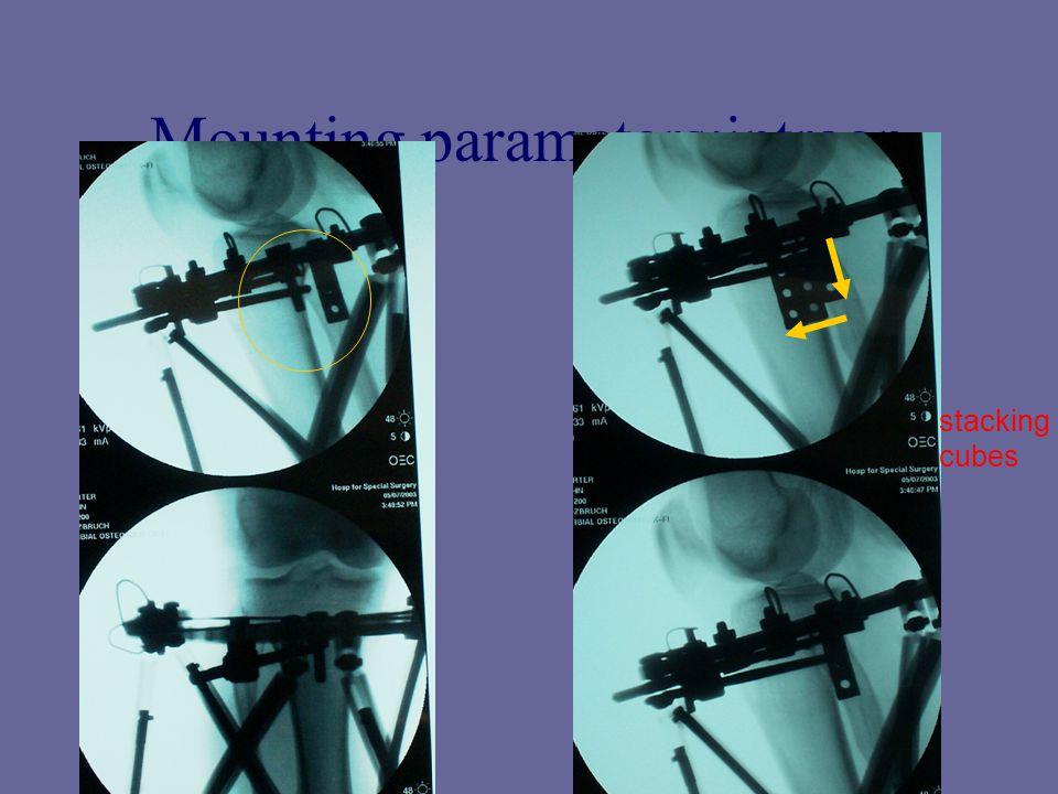 Mounting parameters:intraop