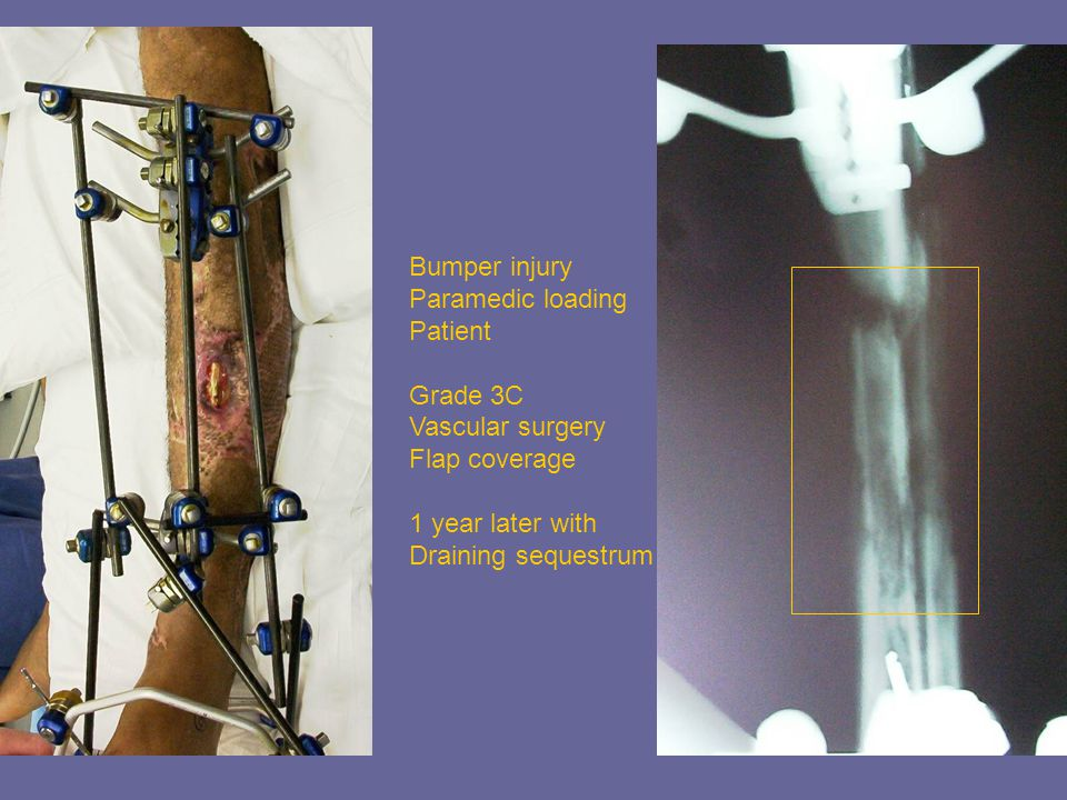 Bumper injury Paramedic loading. Patient. Grade 3C. Vascular surgery. Flap coverage. 1 year later with.
