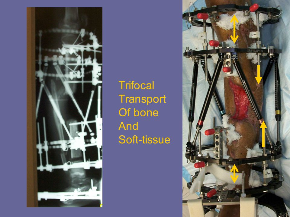 Trifocal Transport Of bone And Soft-tissue