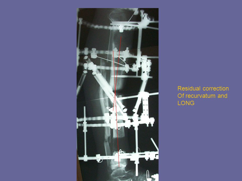 Residual correction Of recurvatum and LONG