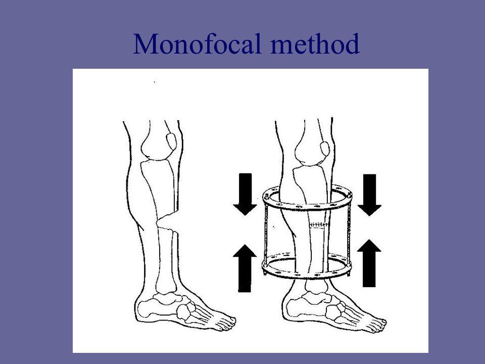 Monofocal method