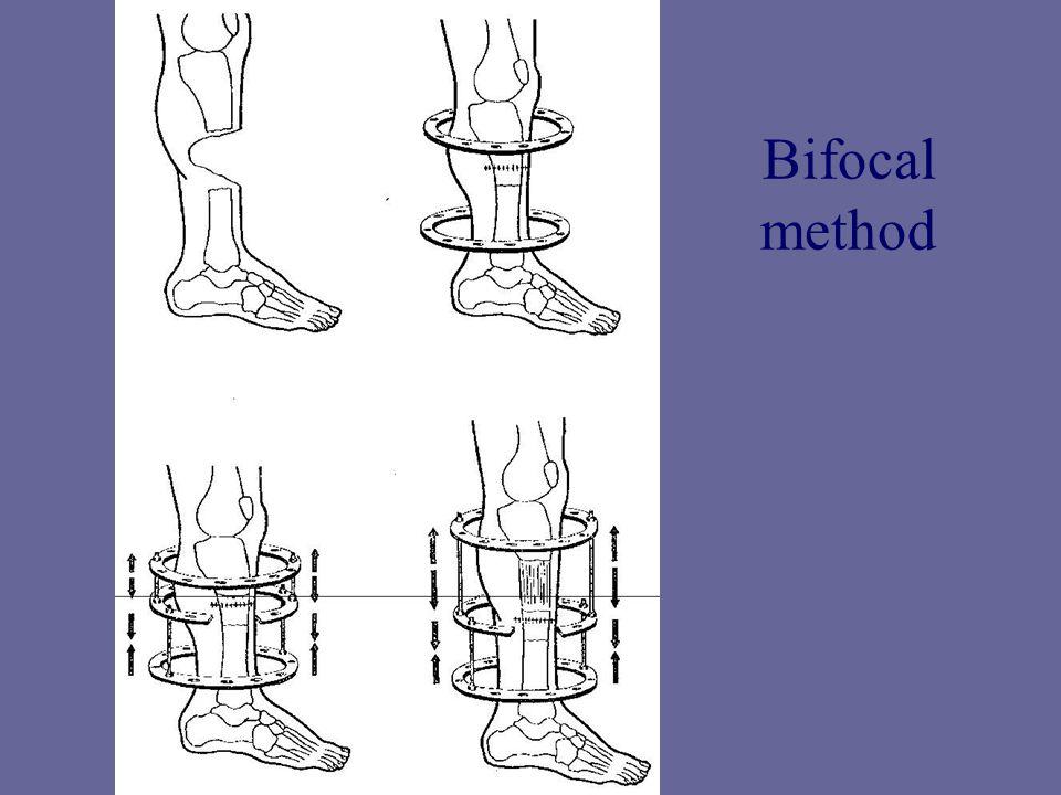 Bifocal method