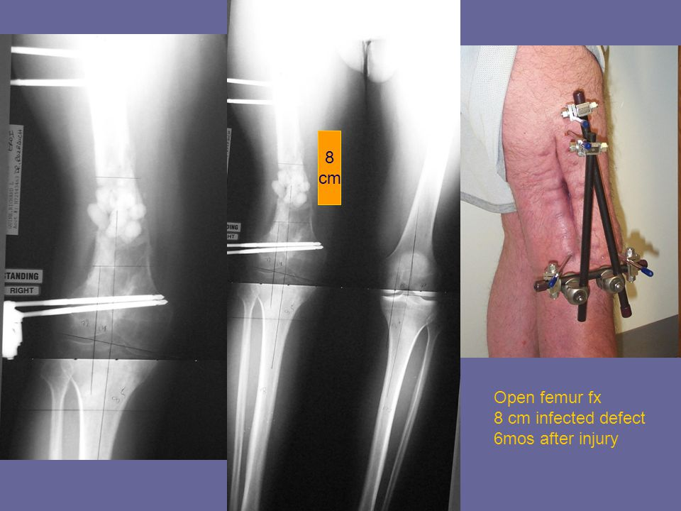 8 cm Open femur fx 8 cm infected defect 6mos after injury