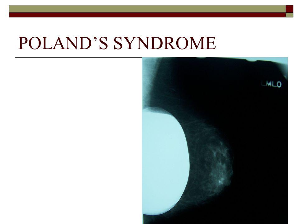 POLAND'S SYNDROME