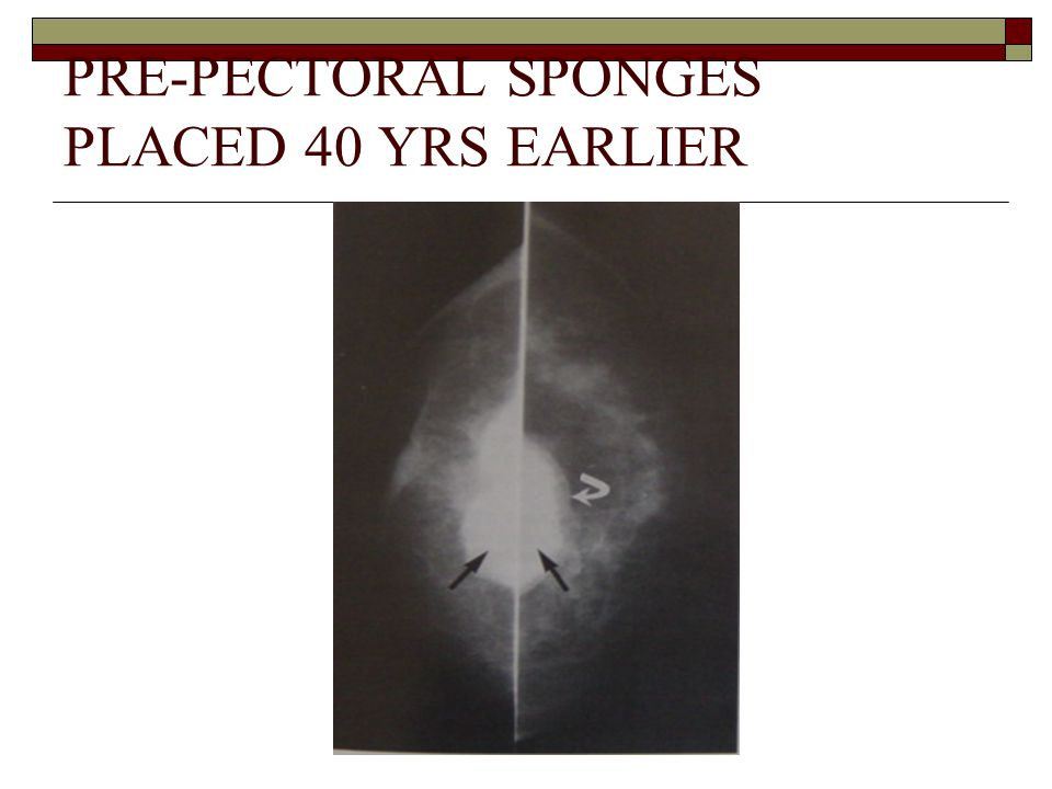 PRE-PECTORAL SPONGES PLACED 40 YRS EARLIER