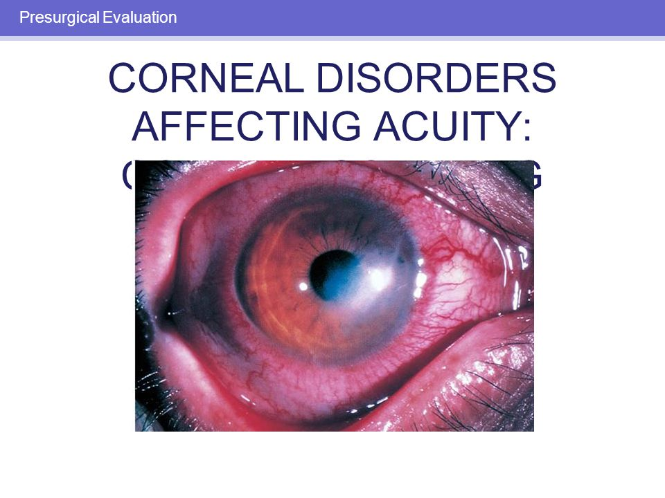 IRIS AND PUPIL CONDITIONS AFFECTING ACUITY