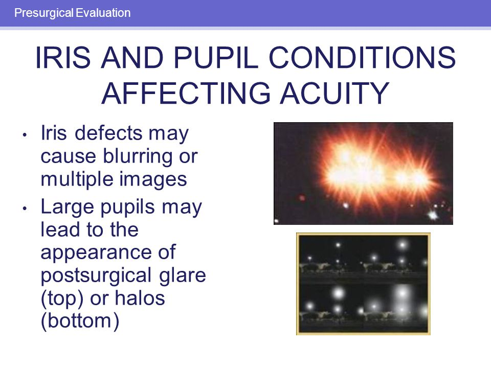 LENS DISORDERS AFFECTING ACUITY