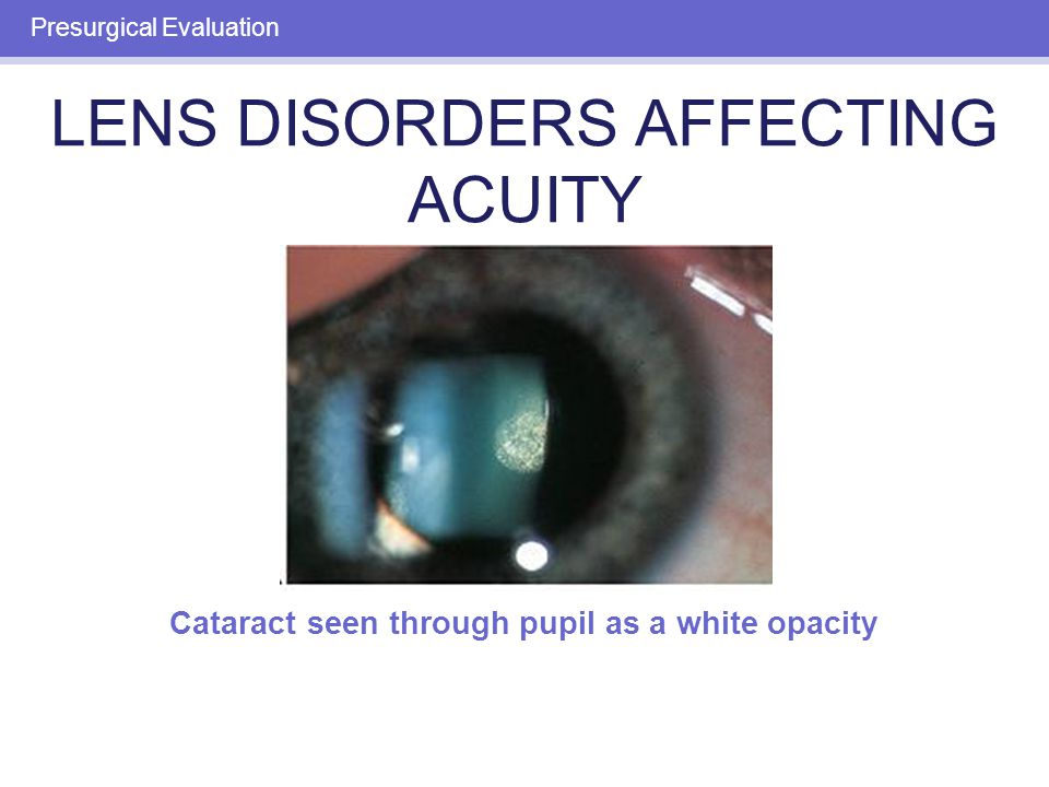 RETINAL DISORDERS AFFECTING ACUITY