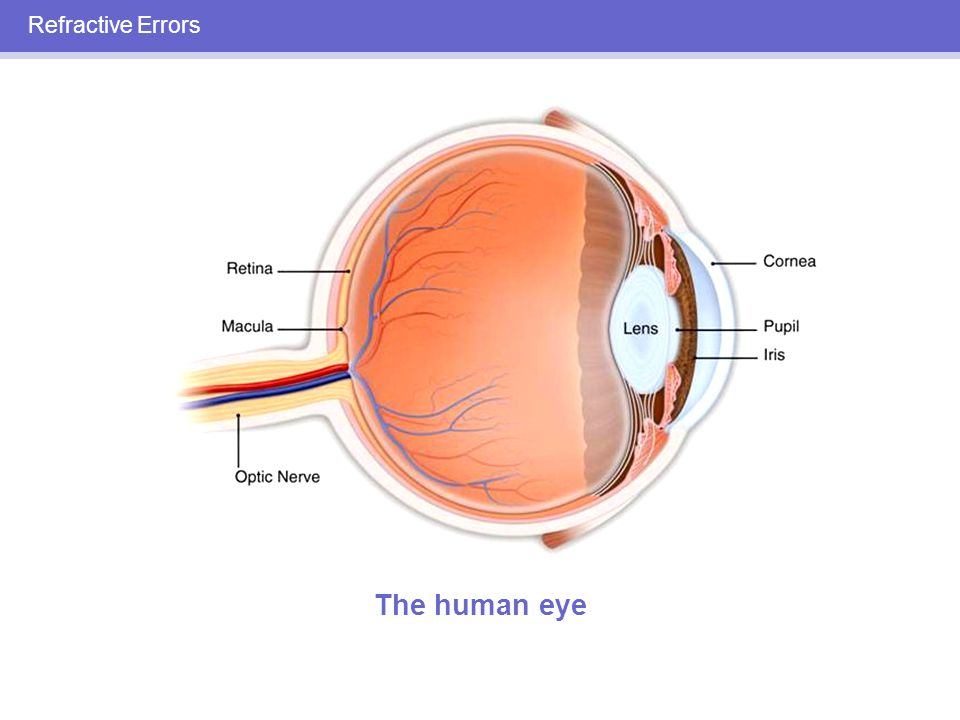 REFRACTIVE ERRORS Myopia—nearsightedness Hyperopia – farsightedness