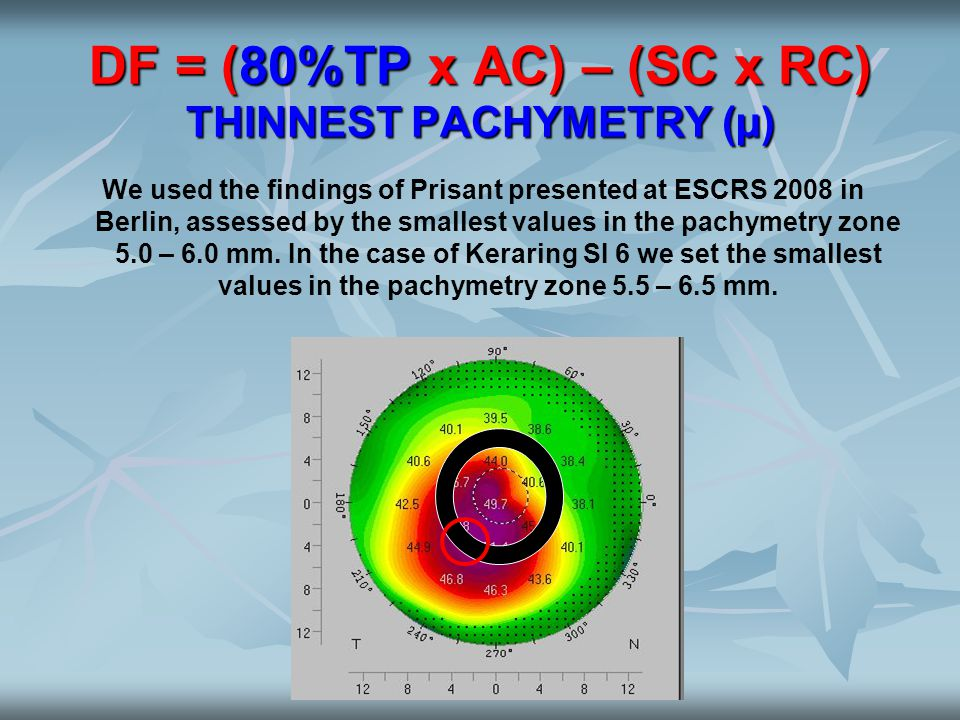DF = (80%TP x AC) – (SC x RC) THINNEST PACHYMETRY (µ)