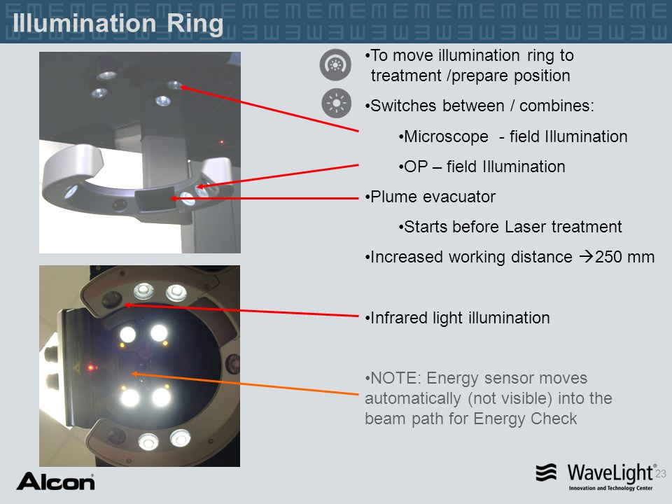 Illumination Ring To move illumination ring to treatment /prepare position. Switches between / combines: