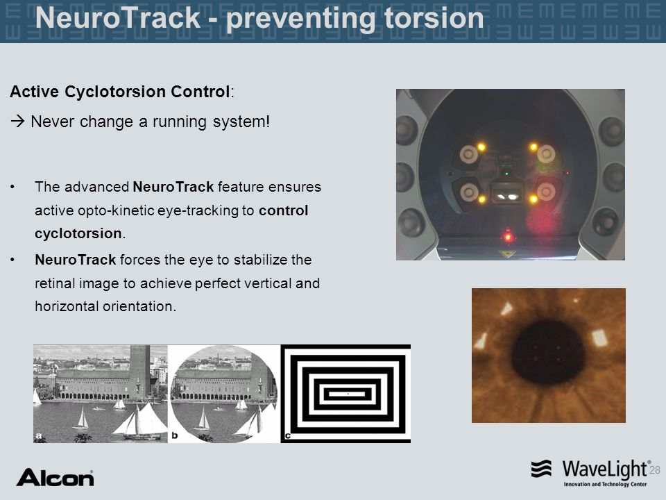 NeuroTrack - preventing torsion