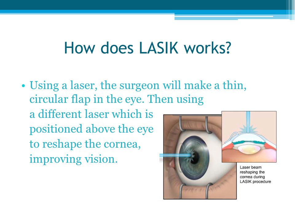 How does LASIK works Using a laser, the surgeon will make a thin, circular flap in the eye. Then using.
