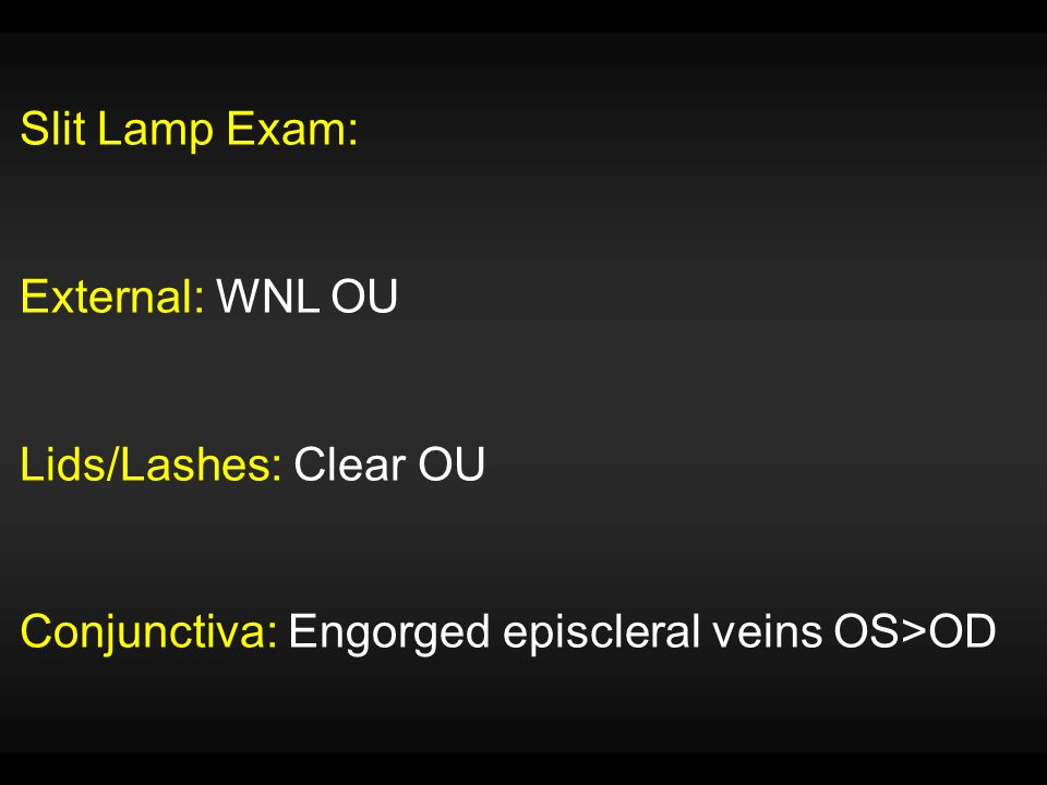 Slit Lamp Exam: External: WNL OU Lids/Lashes: Clear OU Conjunctiva: Engorged episcleral veins OS>OD