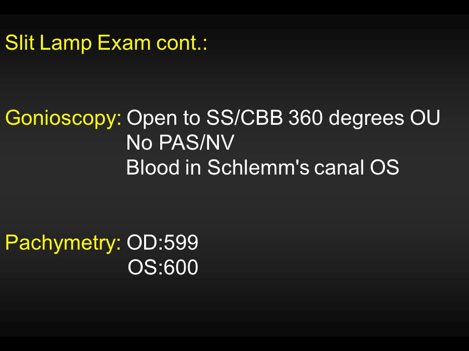 Slit Lamp Exam cont.: Gonioscopy: Open to SS/CBB 360 degrees OU. No PAS/NV. Blood in Schlemm s canal OS.