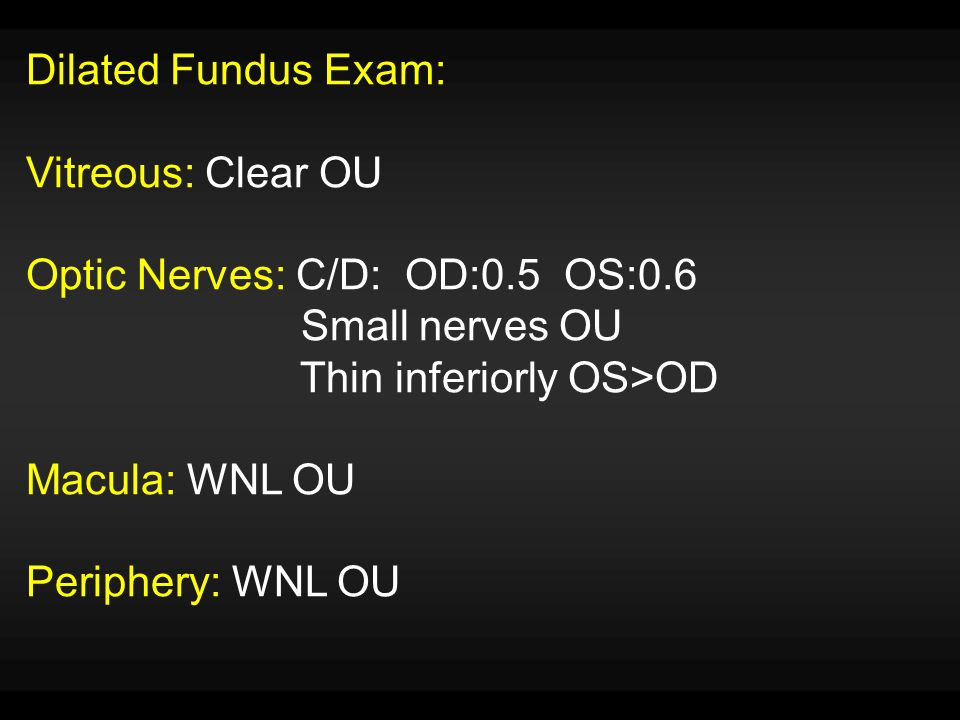 Dilated Fundus Exam: Vitreous: Clear OU. Optic Nerves: C/D: OD:0.5 OS:0.6. Small nerves OU. Thin inferiorly OS>OD.