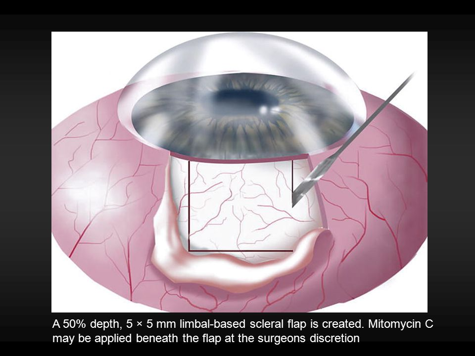 A 50% depth, 5 × 5 mm limbal-based scleral flap is created. Mitomycin C