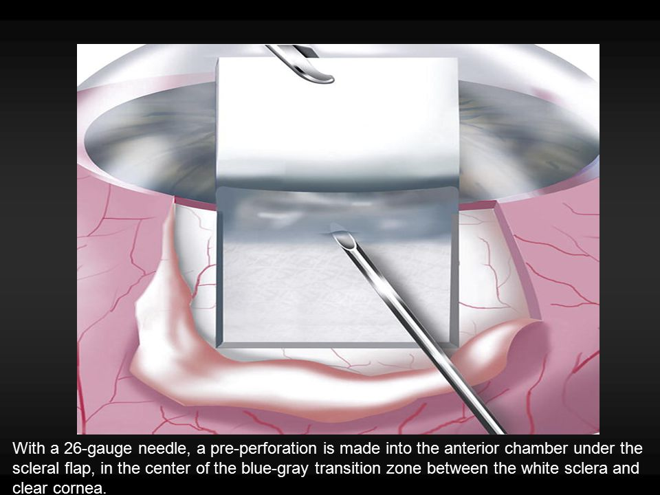 With a 26-gauge needle, a pre-perforation is made into the anterior chamber under the