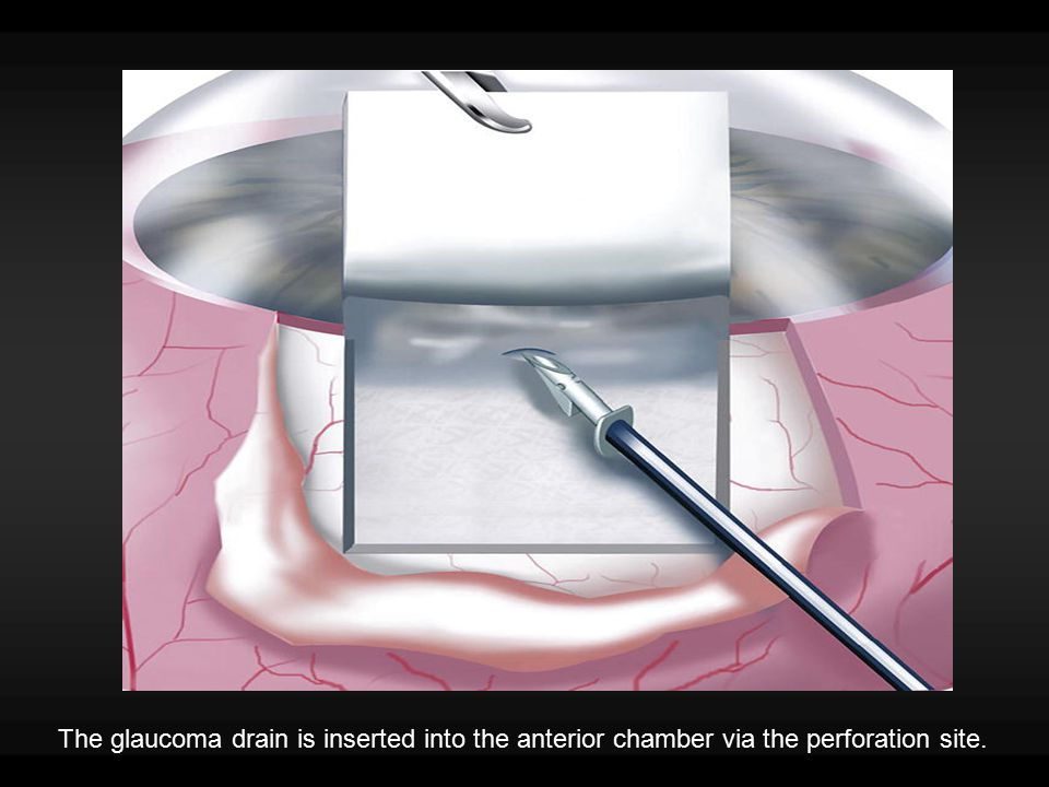 The glaucoma drain is inserted into the anterior chamber via the perforation site.